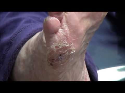 Foot Problems with Dr. Nail Nipper - Best of Judy Sperling
