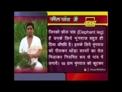 Ayurvedic Treatment For Elephant Leg फीलपांव | Acharya Balkrishna