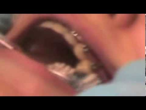 Brushing Braces with a Manual Toothbrush
