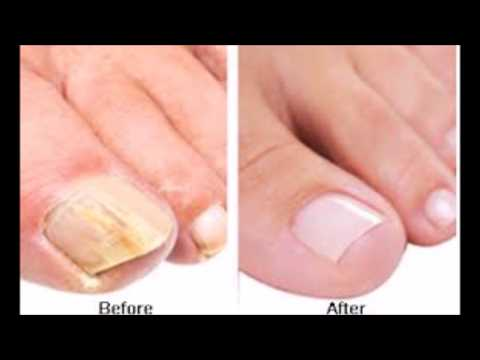 How To Get Rid Of Toenail Fungus Fast And Naturally -Toe Nail Fungus Cure