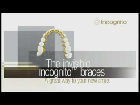 Incognito introduction