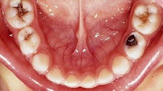 Get Rid Of A Toothache Instantly At Home Best Tooth Pain Cavity Relie