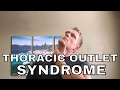 How to get rid of Thoracic Outlet Syndrome (Top 3 Stretches)