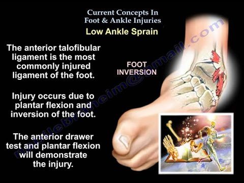 Current Concepts In Foot & Ankle Injuries - Everything You Need To Know - Dr. Nabil Ebraheim
