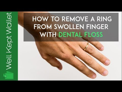 How to Remove a Ring From a Swollen Finger with Dental Floss