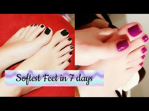 Softest Feet in 7 days. home remedy to get soft feet and get rid of cracked heels