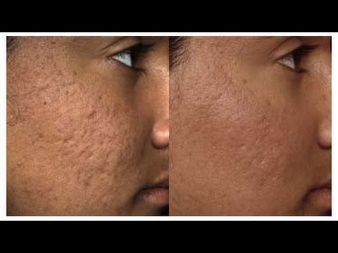 How Middle Easterners Can Treat Acne Holes on the Face?