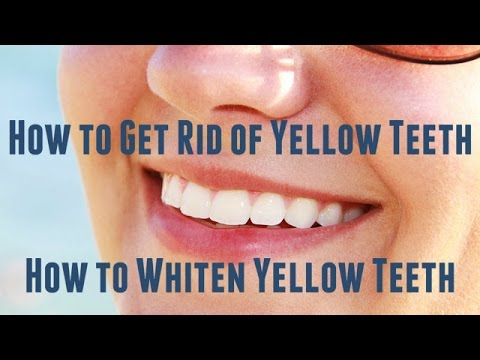 How to Get Rid of Yellow Teeth - How to Whiten Yellow Teeth