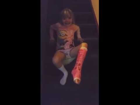 Broken ankle going upstairs