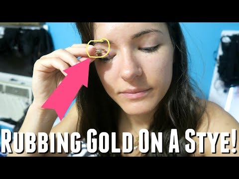 CAN GOLD CURE A STYE? NATURAL HOME REMEDIES FOR A STYE, how to get rid of a stye remedies