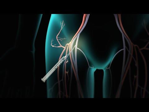 Catheter Ablation for Arrhythmia