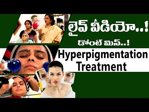 Hyperpigmentation Treatment l How to Treat Hyperpigmentation on Face-Causes of Uneven Skin l Hai TV