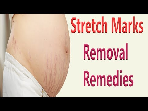 8 Fast Removal Remedies For Stretch Marks | How To Get Rid Of Stretch Marks Fast