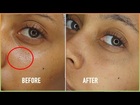 Shrink PORES naturally   summer clear matte and acne free skincare hack