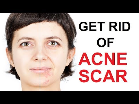 Best 10 Remedies To Get Rid Of Acne Scare Naturally at Home