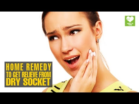 Home Remedies To Get Relieve From Dry Socket (Alveolar osteitis) | Health Tips | Educational Video