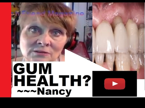 Gum Tissue Does NOT 'Brush Away', Bacteria Makes Gum Receed ~~~Nancy Gurish