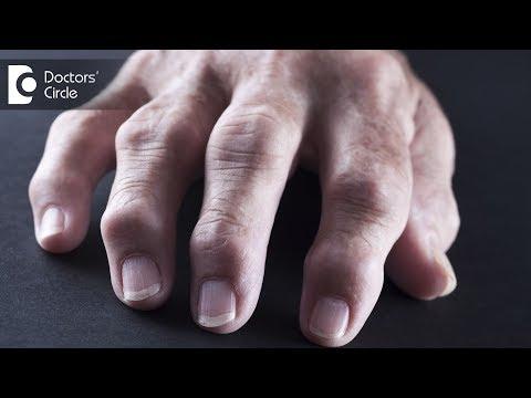 Tips for coping with Rheumatoid Arthritis - Dr. Prashanth Jain