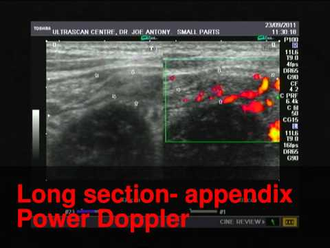 Acute appendicitis- ultrasound and Power Doppler video