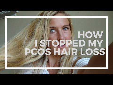 How to Treat PCOS Hair Loss