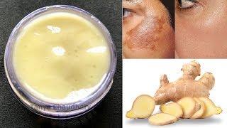 DIY Ginger Cream   Remove Pigmentation, Dark Spots & Acne Scars  Anti-Aging & Skin Lightening Cream