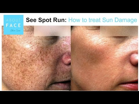 See Spot Run: How to get rid of Sun Damage