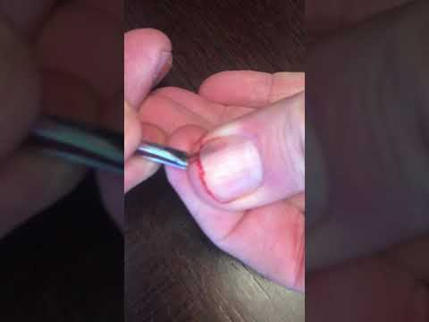 Pulling out a giant splinter from under fingernail