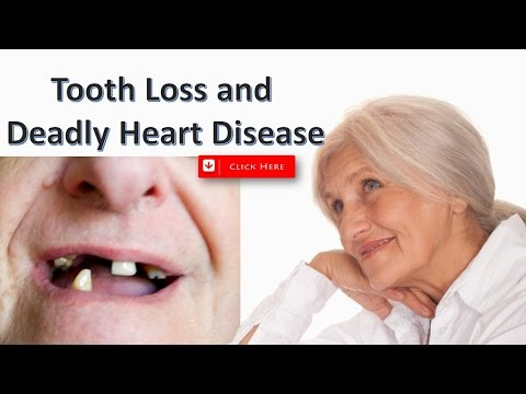 Tooth Loss and Deadly Heart Disease