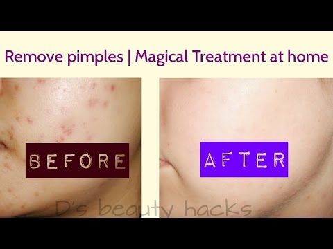 In 5 DAYS - Remove PIMPLE, BLACK SPOTS & ACNE SCARS | Remove pimples , Pimple Marks,acne, Fast