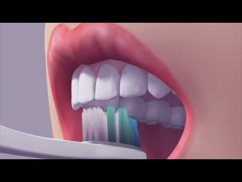 How To Brush Your Teeth - Dr. Sarabjeet Singh   Chandigarh Orthodontics