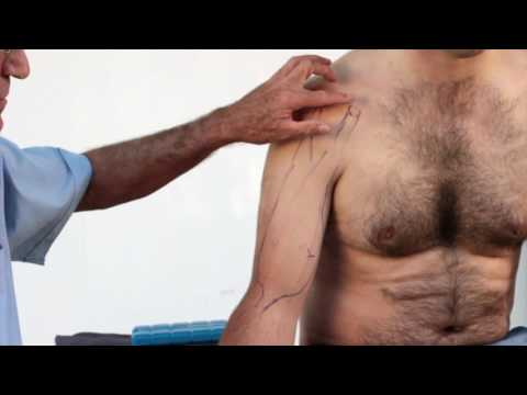 Biceps Brachii Muscle Strains - Treatment