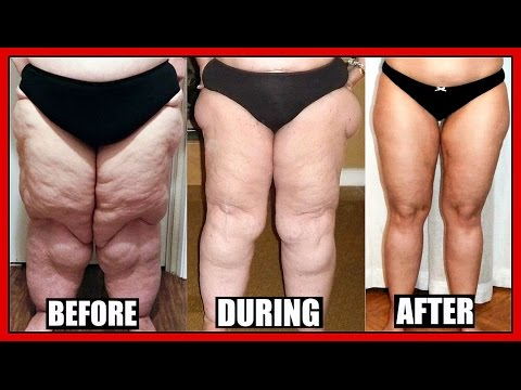 How To Lose THIGH & LEG Fat FAST ( FOR MEN & WOMEN )