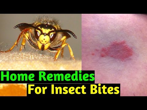 Home Remedies to Treat Insect Sting and Bites