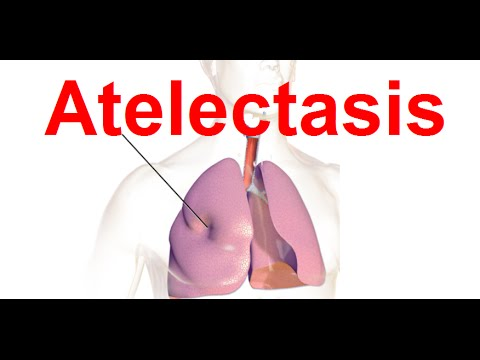 Atelectasis | Rapid Shallow and Difficulty Breathing