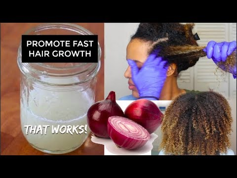 How to Grow Long Thicker Hair FAST With Onion Juice For Hair Regrowth And Hair loss