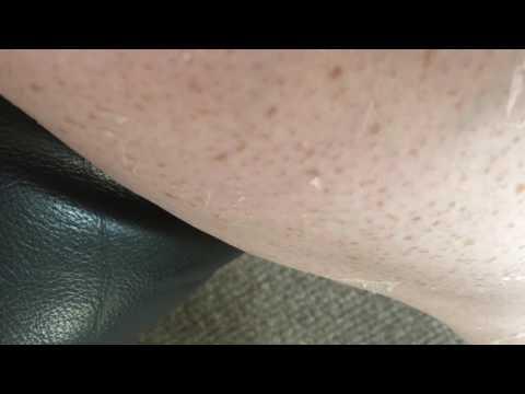 Peeling Sunburn Part 2