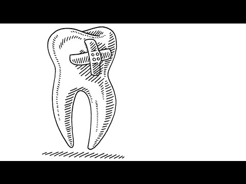 What it means when you dream about your teeth falling out