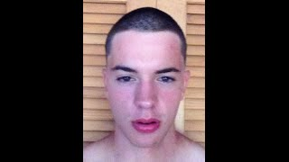 One Year Of Hair Growth In One Minute