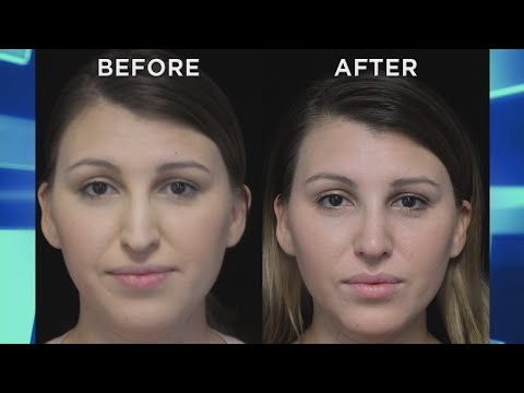 Woman Debuts New Nose after Scar-Free Rhinoplasty