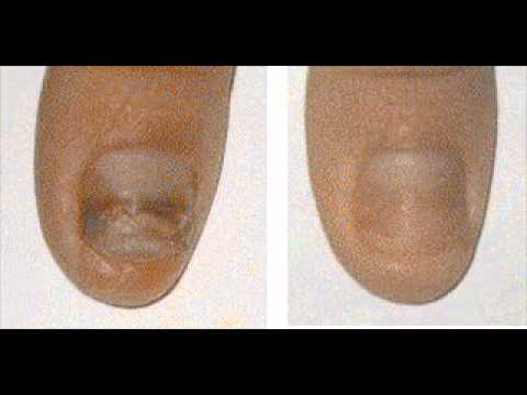 Yellow Toenails Before and After - What's Your Choice.wmv