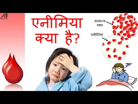 Anemia Causes, Types, Symptoms, Diet and Treatment in Hindi | How to cure anemia at home in Hindi