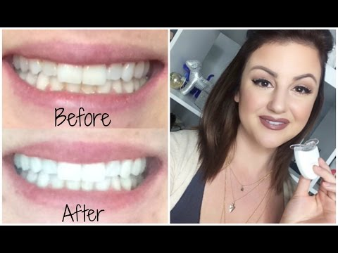 ♡ HOW TO GET SUPER WHITE TEETH! | EASY & CHEAP ♡