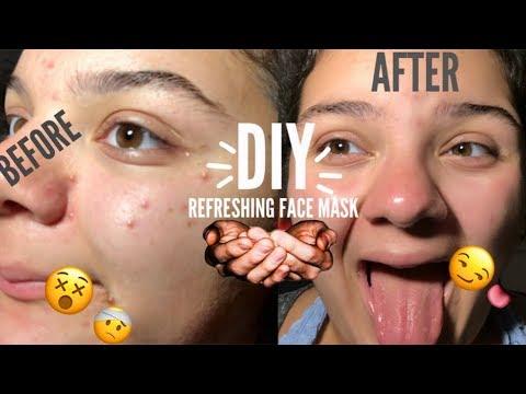 DIY REFRESHING NO ACNE FACE MASK