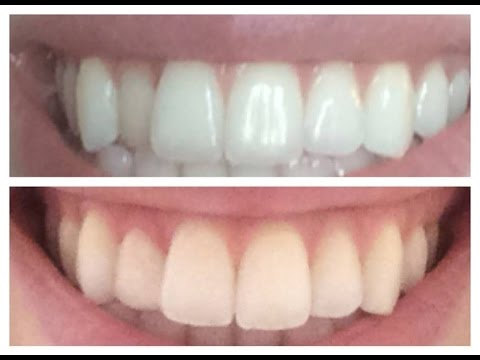 Fixing a crooked tooth inexpensively -