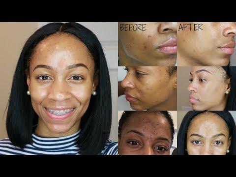 How I Remove Dark Spots & Acne Scars || Nighttime Skincare Routine