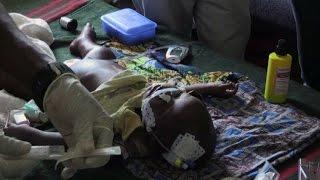 Nigeria, migliaia di bambini muoiono di fame per la guerra civile