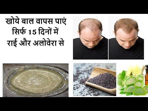 बालों का झड़ना बंद सिर्फ ३ दिन में   ,लंबे बाल , घने बाल ,सिलकी बाल का रामबाण पेस्ट हिंदी /उर्दू में