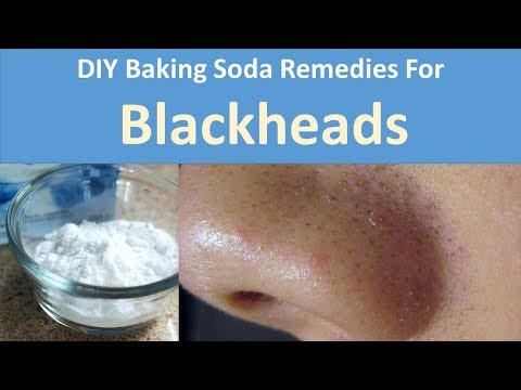 DIY Baking Soda Remedies for Blackheads|Baking Soda with Tooth paste, Baking Soda with Honey