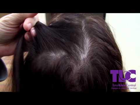 TLC Shows the difference between Lice and dandruff
