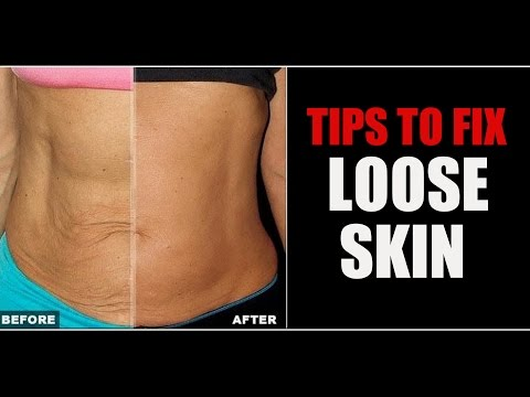 How to Tighten Up Loose Skin | Sagging skin Belly & Arm Skin | Info by Guru Mann